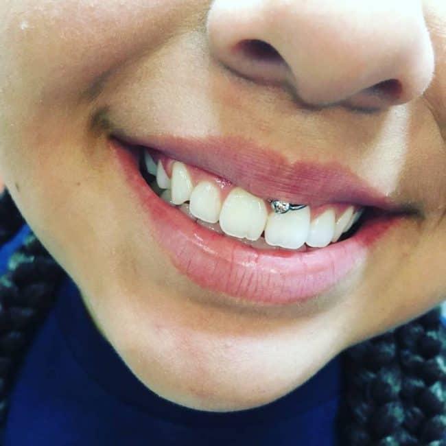 smiley-piercing15